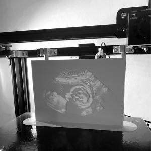 Ultrasound Keepsake